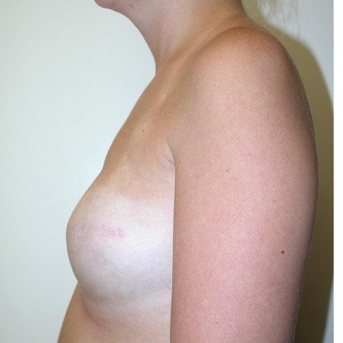 IMPLANT RECON 9 After Photo