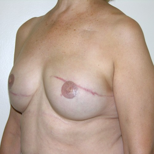 IMPLANT RECON 10 After Photo