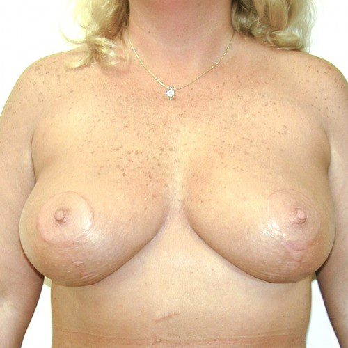 Breast Lift 10 After Photo