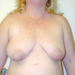 Breast Lift 10 Before Photo - 6