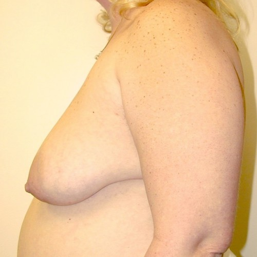 Breast Lift 10 Before Photo