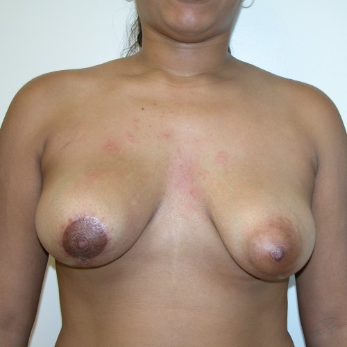 Breast Lift 11 After Photo