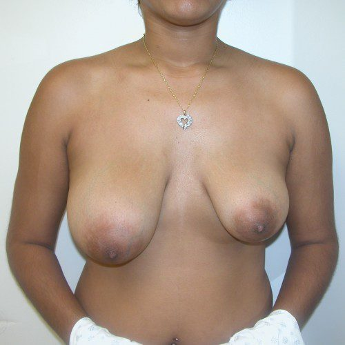 Breast Lift 11 Before Photo