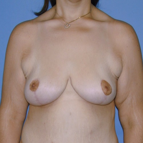 Breast Lift 12 After Photo