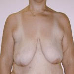 Breast Lift 12 Before Photo - 4