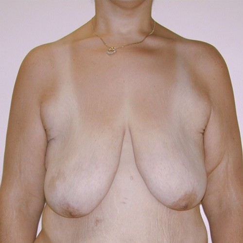 Breast Lift 12 Before Photo