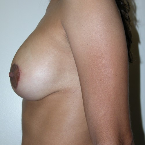 Breast Lift 13 After Photo