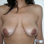 Breast Lift 13 Before Photo - 3