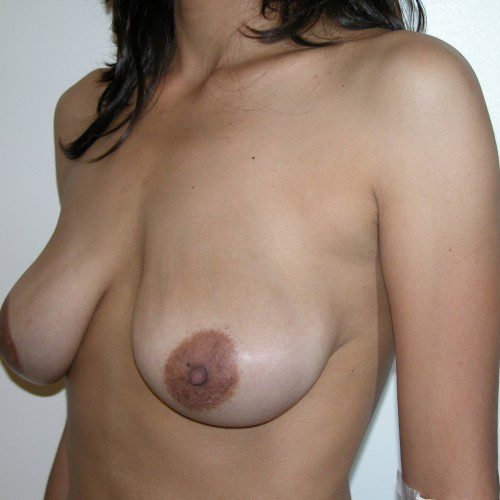 Breast Lift 13 Before Photo