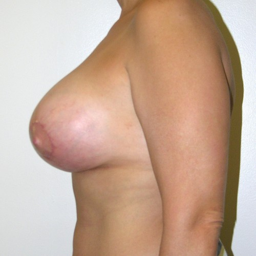 Breast Lift 14 After Photo