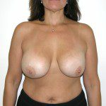 Breast Lift 14 Before Photo - 2