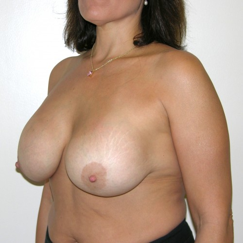 Breast Lift 14 Before Photo