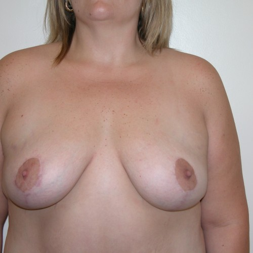 Breast Lift 15 After Photo