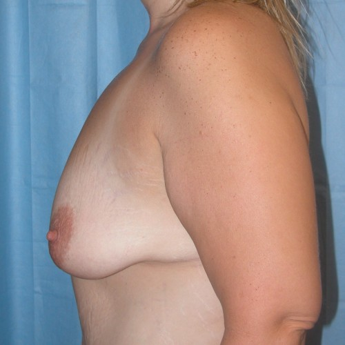 Breast Lift 15 Before Photo