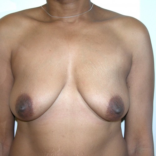 Breast Lift 16 Before Photo