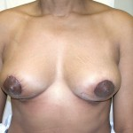 Breast Lift 16 After Photo - 1