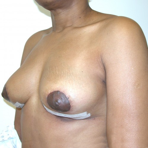 Breast Lift 16 After Photo