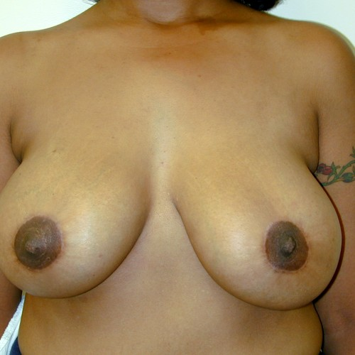 Breast Lift 02 After Photo