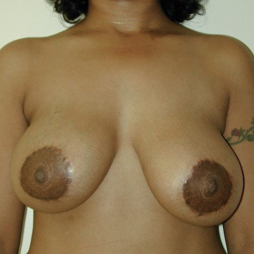 Breast Lift 02 Before Photo