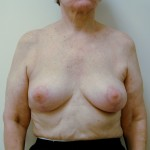 Breast Lift 05 After Photo - 12