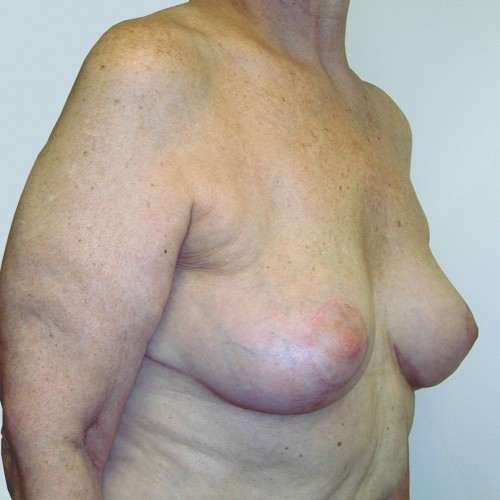 Breast Lift 05 After Photo
