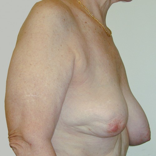 Breast Lift 05 Before Photo