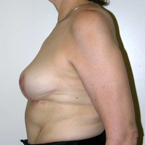 Breast Lift 03 After Photo