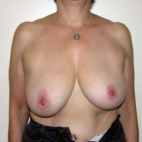 Breast Lift 03 Before Photo