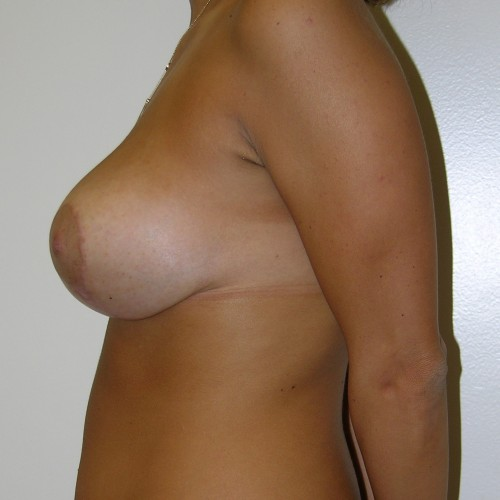 Breast Lift 04 After Photo