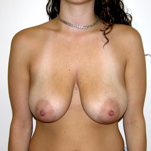 Breast Lift 04 Before Photo