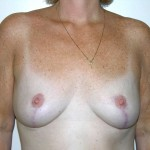 Breast Lift 06 After Photo - 10