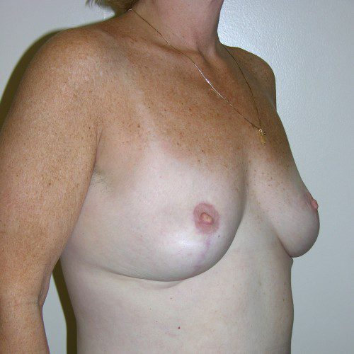 Breast Lift 06 After Photo