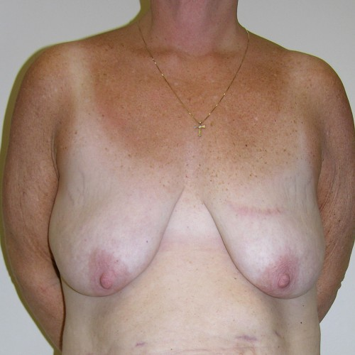 Breast Lift 06 Before Photo