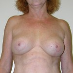 Breast Lift 07 After Photo - 9