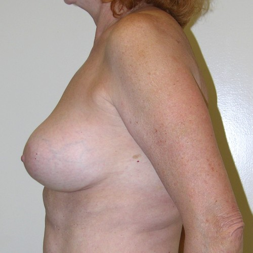 Breast Lift 07 After Photo