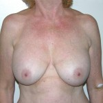 Breast Lift 07 Before Photo - 9