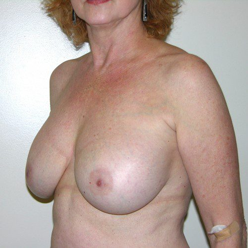 Breast Lift 07 Before Photo