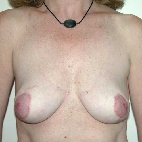 Breast Lift 08 After Photo