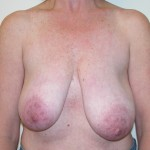 Breast Lift 08 Before Photo - 8