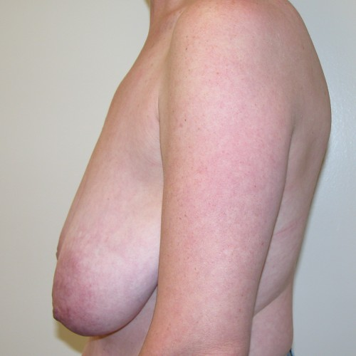 Breast Lift 08 Before Photo