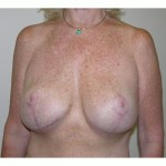 Breast Lift 09 After Photo - 7
