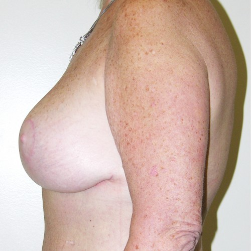 Breast Lift 09 After Photo