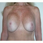 Breast Lift 09 Before Photo - 7