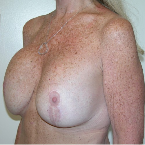 Breast Lift 09 Before Photo