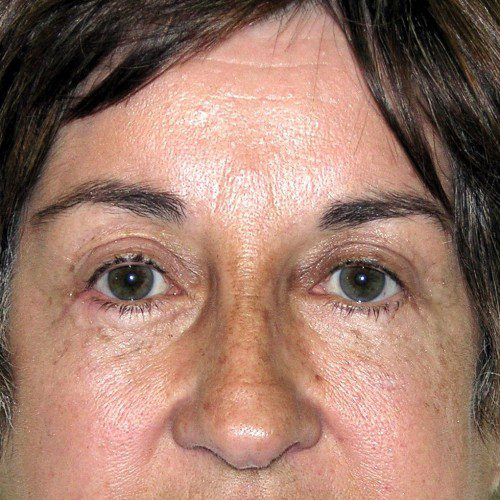Browlift 15 After Photo