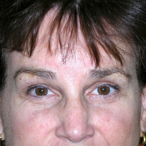 Browlift 16 After Photo