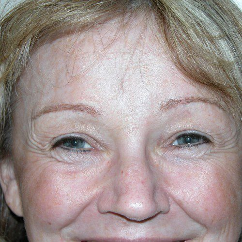 Browlift 10 After Photo