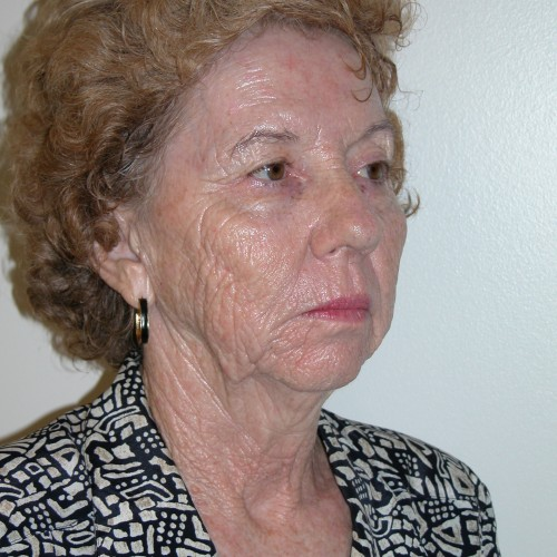 Facelift 15 Before Photo