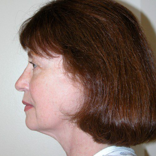 Facelift 16 Before Photo