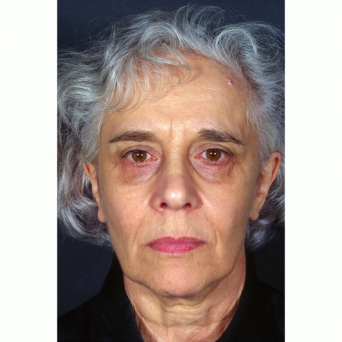Facelift 17 Before Photo